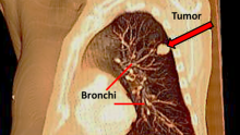 A tumor in the left lung